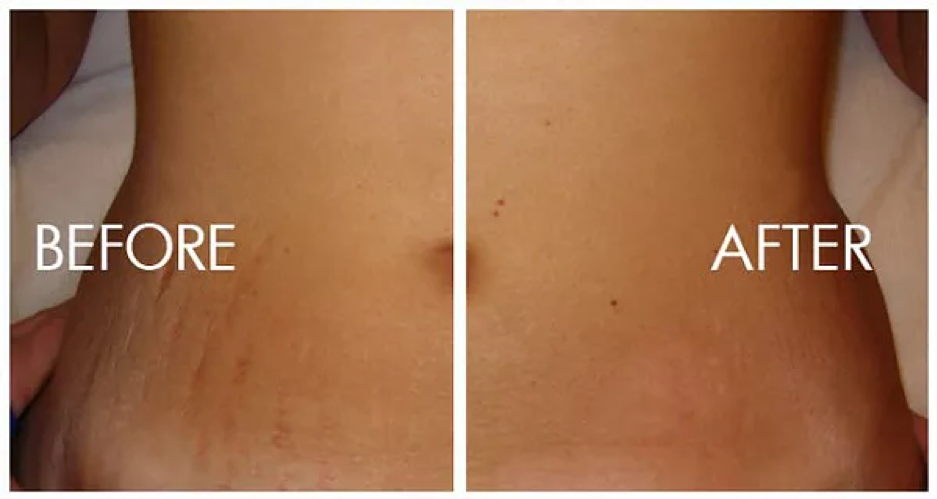 Stretch marks removal in Delhi, best medication at low cost