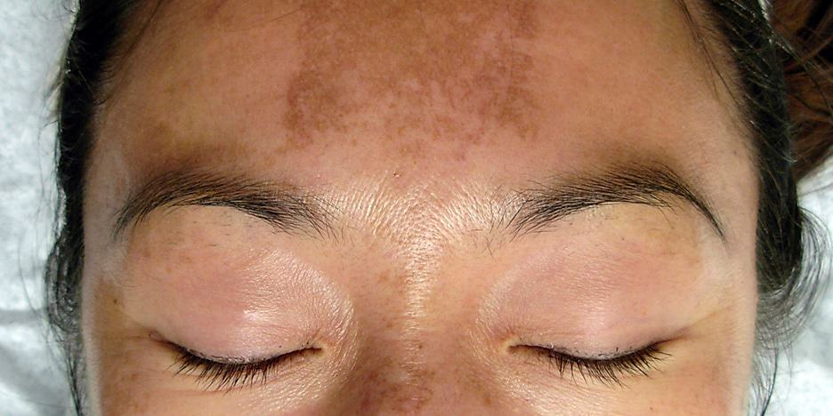 Melasma Treatment, Causes, Symptoms, Side effects