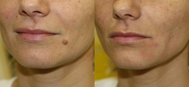 Moles Removal in Dehradun, Procedure, Cost, Benefits