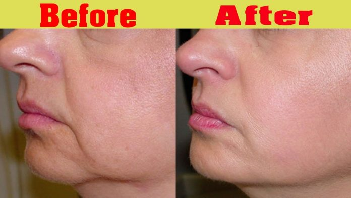 Laser Skin Tightening Treatment in Delhi