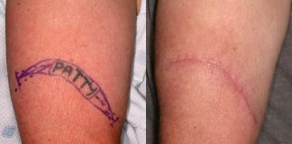 Tattoo removal in Delhi, Procedures, Cost and Aftercare